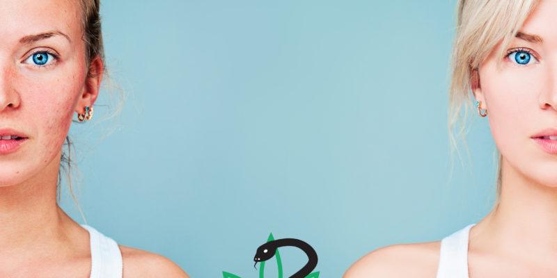 Hogyan használj CBD-t a rosacea kezelésére?